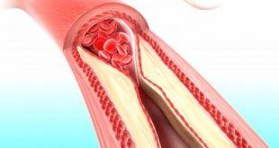 arteries_clogging.jpg