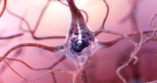 scientists-confirm-long-suspected-link-between-obstructive-sleep-apnea-and-alzheimers-disease