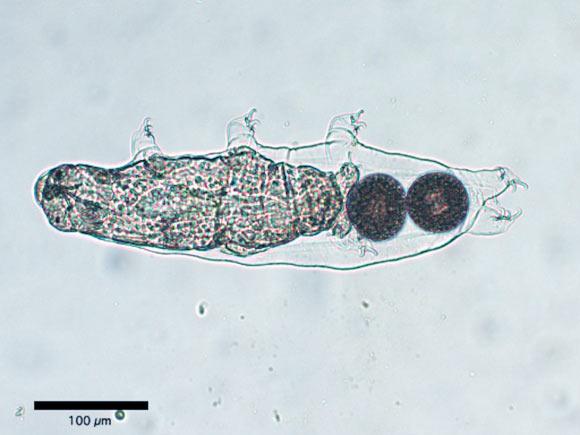 , Tardigrades Resembling Insects, #Bizwhiznetwork.com Innovation ΛI